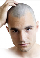 Bald head hair for men.PNG